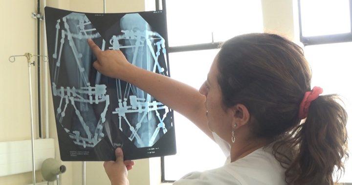 Paciente recibe tratamiento traumatológico con tecnología de punta que permite recuperar masa ósea en Hospital Gustavo Fricke